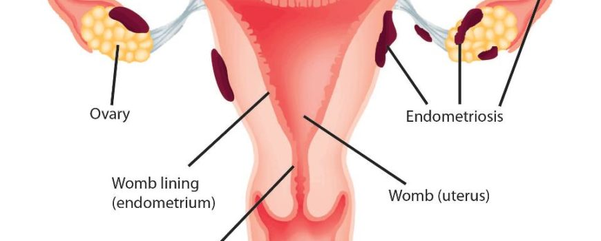 Endometrioza – Tratament. Generalitati.