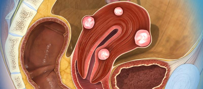 Fibrom uterin voluminos – miomectomie laparoscopica
