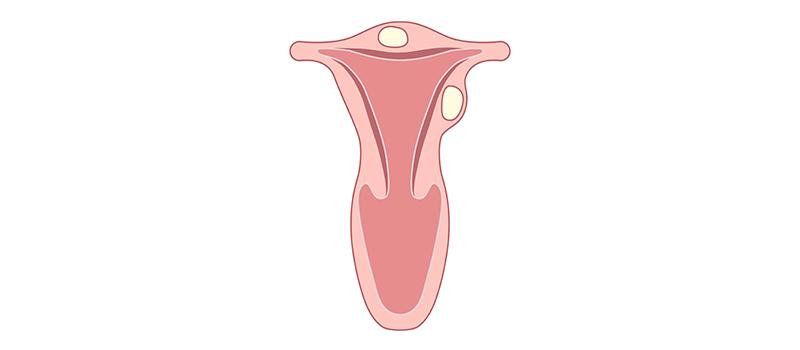 Miomectomie multipla laparoscopica. Harmonic scalpel. Video interventie.