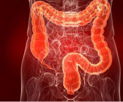 Nodul endometriozic rectal. Sindrom subocluziv. Prezentare de caz.